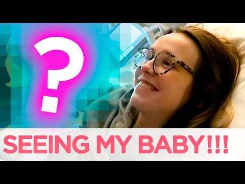 SEEING HER FACE FOR THE FIRST TIME!!   Acacia & Jairus