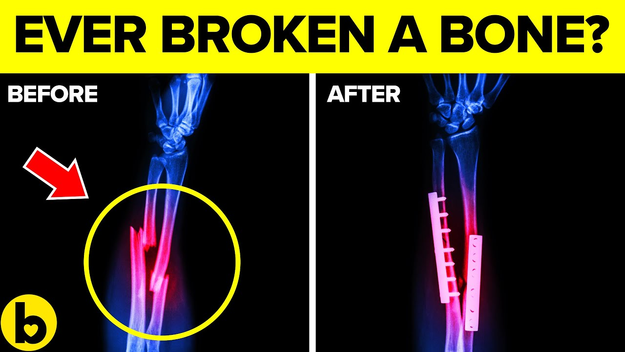 This is How your Broken Bones Heals