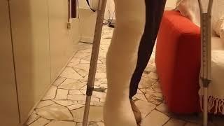 long leg cast walking. try to match good leg's shoe