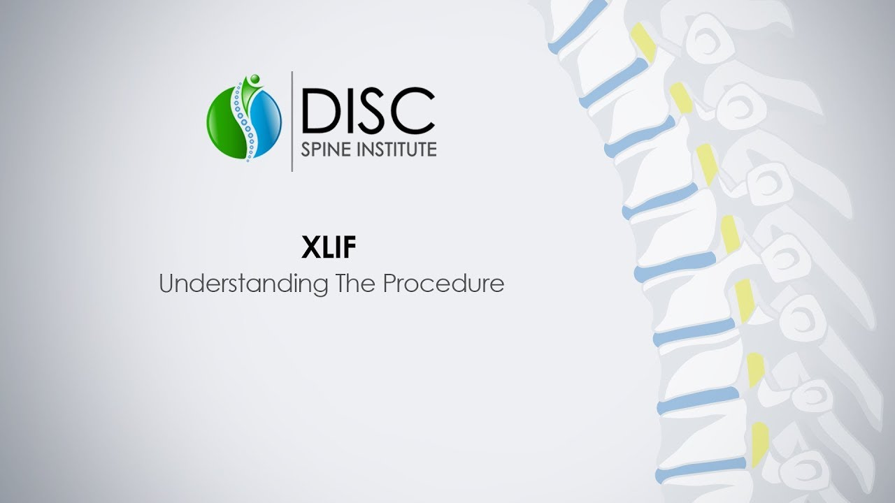 Minimally Invasive XLIF