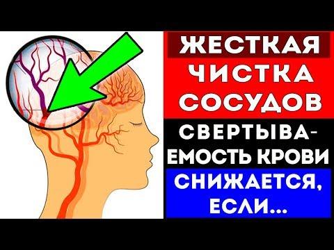 Чистим сосуды головы и тела. Атеросклероз. Как почистить и оздоровить сосуды photo