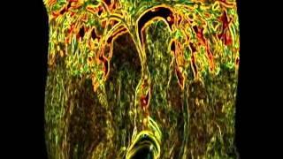 Brain Stalk - Avalon Life Tree