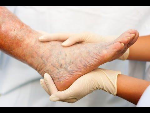 Varis Tedavi Varis Ameliyatı İzle