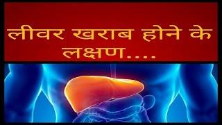 लीवर  खराब  होने के प्रमुख लक्षण /How to Recognize the Symptoms of Liver Disease