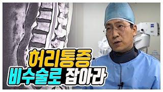 """지긋지긋한 허리통증비수술로 잡아라 """"척추질환"""" 다시보기"""
