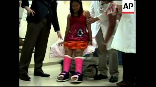 Latest on girl that  had surgery on 'upside down' feet