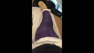 ruptured quad tendon cast removal