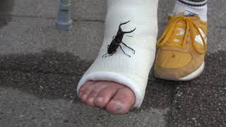 Long leg cast with spider