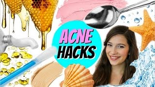 EXTREME ACNE CURE HACKS!!!
