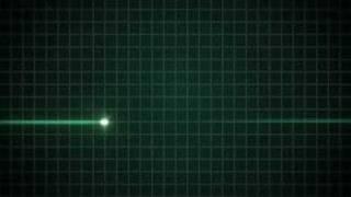 EKG flatline