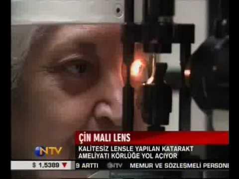 DİKKAT, 5 dolarlık Çin malı lensler kör ediyor, 30.04.2009