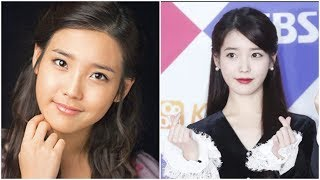 This is the complete truth behind IU's plastic surgery