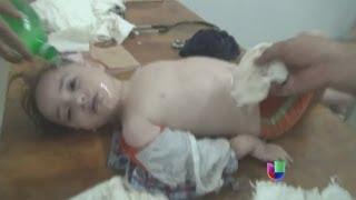 Denuncian ataque químico en Siria - Noticiero Univisión