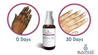 HOW TO GET RID OF DARK KNUCKLES AND DARK SPOTS - WHY Your Spots Will Fade & Dark Knuckles Will Clear width=