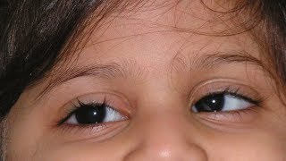 Can eye exercises help in correction of Squint? - Dr. Sriram Ramalingam width=