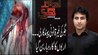 Andher Nagri | Andher Nagri team exposed Illegal trade of body parts in Pakistan |7 July 2018