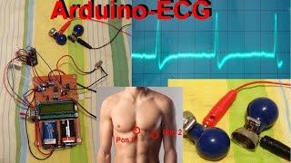 simple & cheap ECG with arduino / EKG mit Arduino