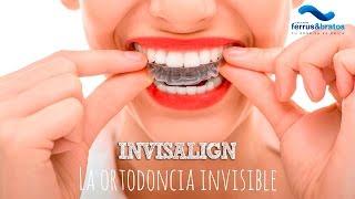 Invisalign: la ortodoncia sin brackets