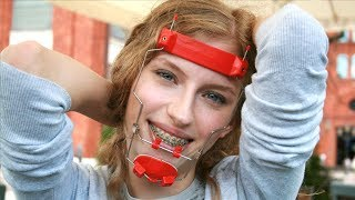 Summer's Orthodontic Braces with Headgear Facemask - Now on our Patreon!