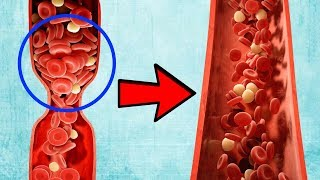 Natural Blood Thinners To Prevent Blood Clots 🌱
