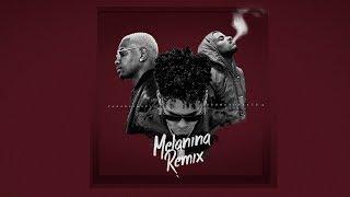 Melanina Remix - Zuka Bue Music ft Dice & BrunuxuBeats