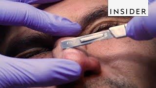 Procedure Scrapes off Your Dead Skin