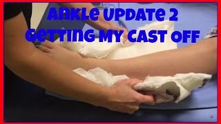 Ankle Update!! | Cartwheelcarly