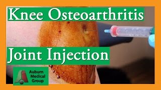 Knee Osteoarthritis Steroid Joint Injection Treatment | Auburn Medical Group