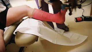 Cast comes off my leg
