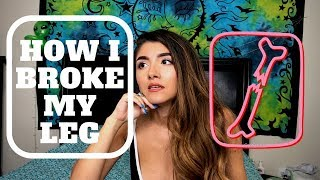HOW I BROKE MY LEG - STORY TIME