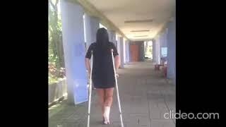 Esther se torció el tobillo y caminó con muletas.