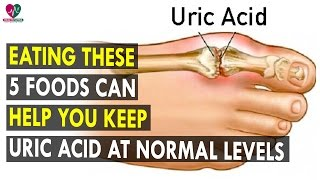 Eating these 5 foods can help you keep uric acid at normal levels || Health Sutra - Best Health Tips