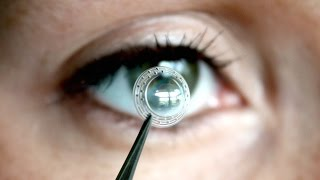 Can Stem Cell Injections Cure Blindness?