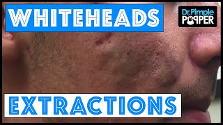 Whitehead extractions on a patient with improving acne
