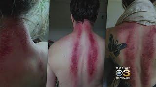 'Gua Sha' Treatment Creates Bruises To Relieve Pain