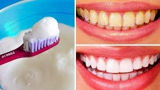 10 Modi Naturali per Sbiancare i Denti a Casa
