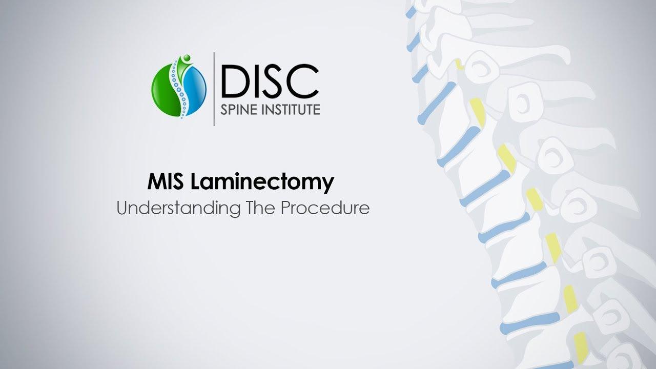 Minimally Invasive Laminectomy