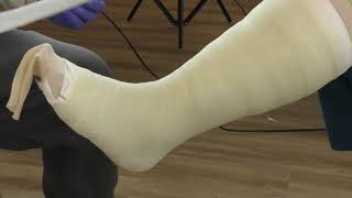 Short Leg Cast- Tutorial