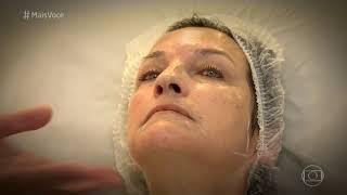 Conheça Novo Tratamento de Rejuvenescimento e Reestruturação Facial   Programa Mais Você width=