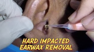 Hard Impacted Earwax Removal