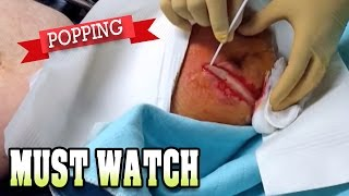 Best Infections, Pops & Popping Pimples! (BEST OF CHANNEL PREVIEW)