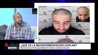 Micropigmentación capilar, descubra qué es