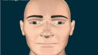 Atrofia ossea facciale generalizzata (maschio).wmv