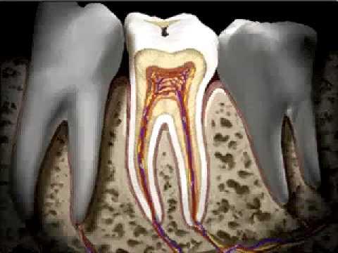 Мукачево – Caries – стоматолог Хлопонін О.П. 0509971823