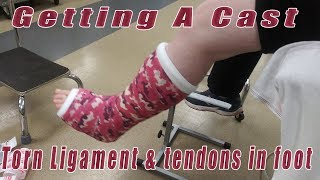 Getting a cast after surgery - torn tendon and ligament.