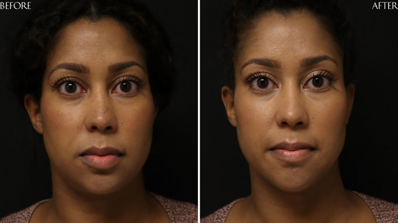 Preview of Dermal filler and Botox®: Amethyst 30 y.o.