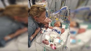 Baby Born Dead At 5 Months, 8 Minutes Later Doctors Are Shocked By Miracle