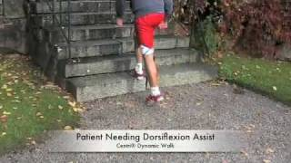 Dynamic Walk AFO from Centri® a Fillauer Company [Video 2]