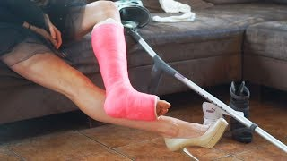 Girl stay in home with pink short leg cast SLC, how to make a leg cast, full clip - 45 minutes