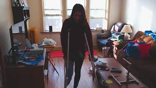 amputee First full leg cast stand-up fail